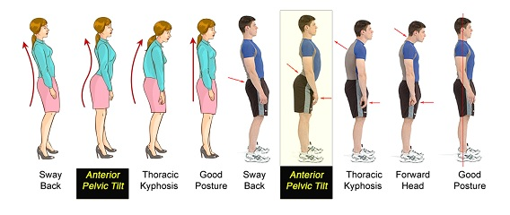 Correct Posture1